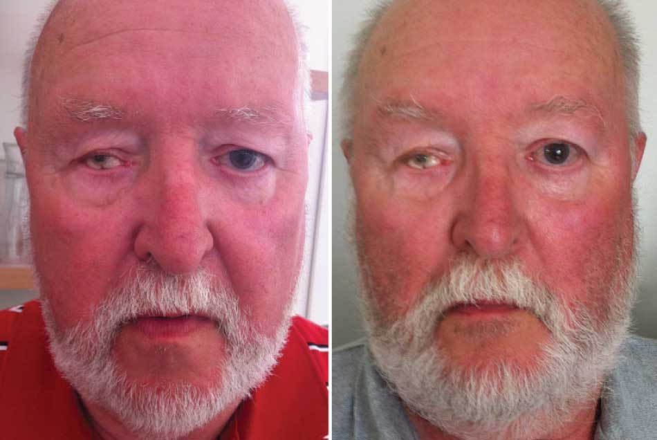 male client with beard before and after photo facial rejuvenation miskin organics