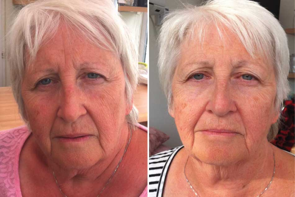 60 something female client before and after photo facial rejuvenation miskin organics