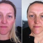Natural Facial Rejuvenation. Does it Really Live Up to it's Name?